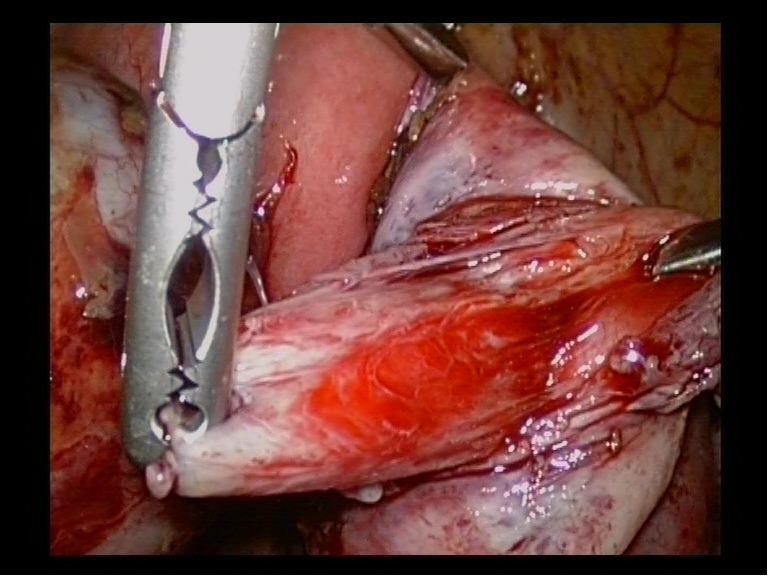 Choclate Endometriotic Cyst Stripping