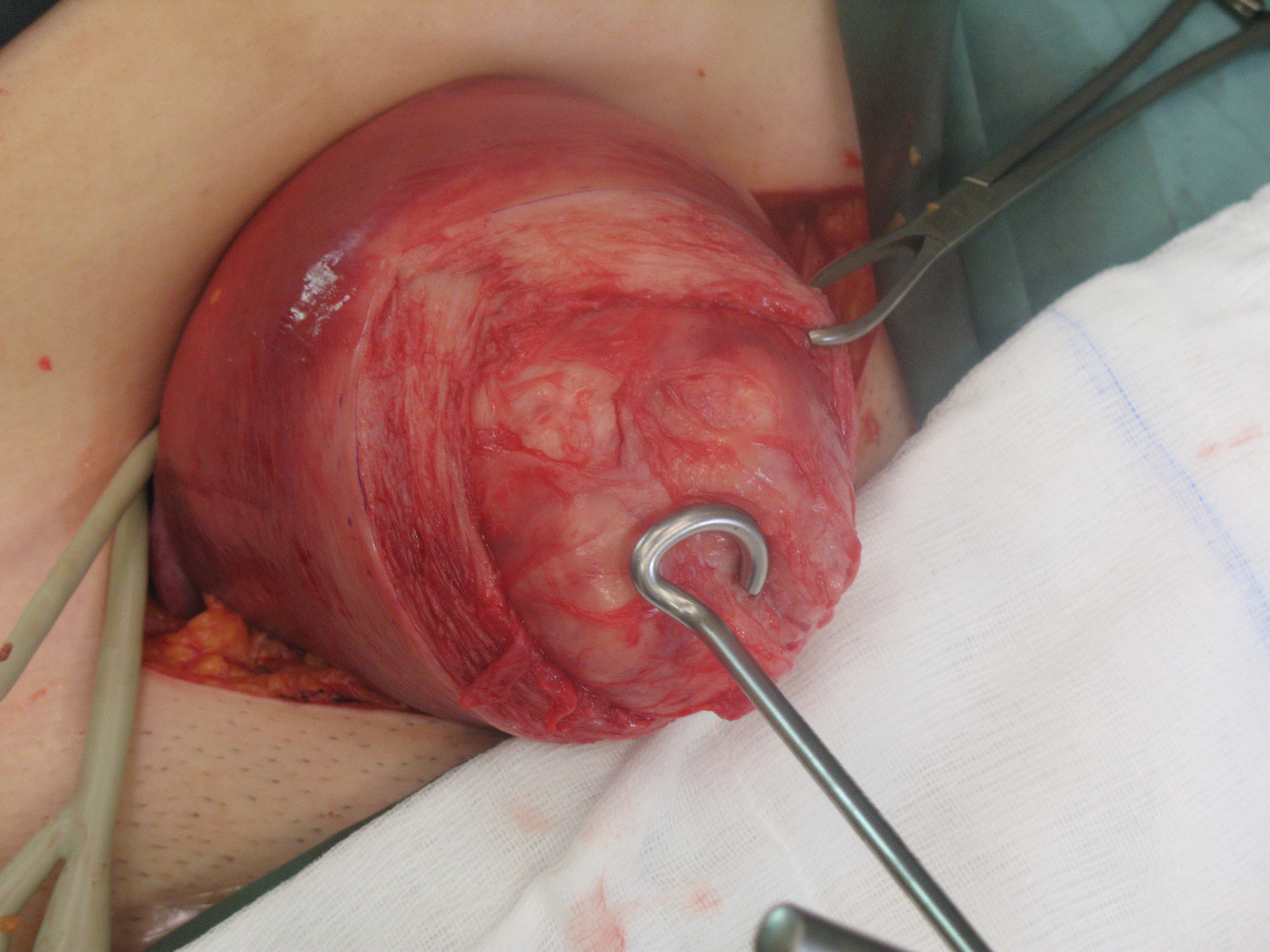 delivering-fibroid-using-fibroid-scew