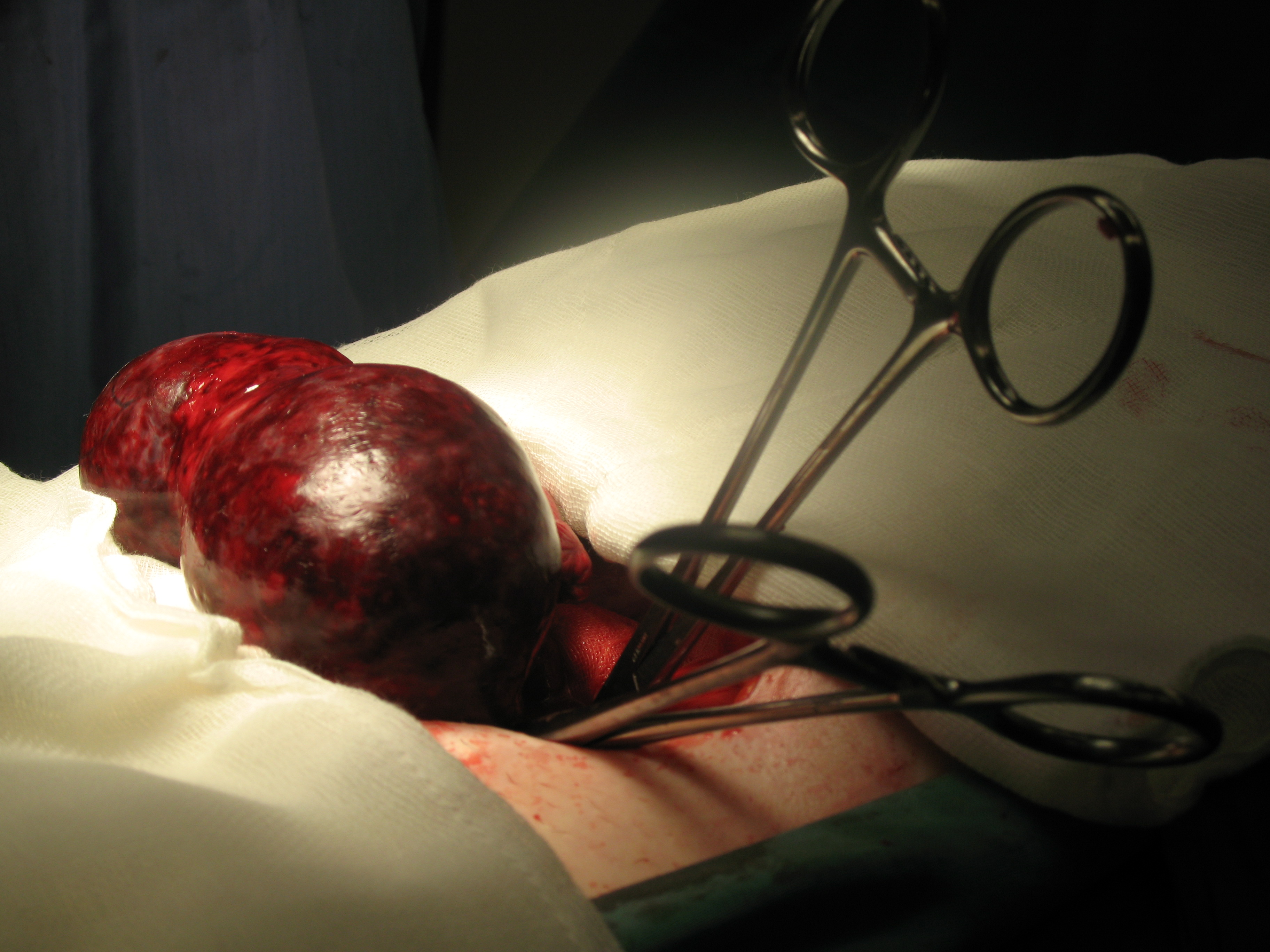 removal-gangerernous-ovarian-cyst through abdominal cut laparotomy