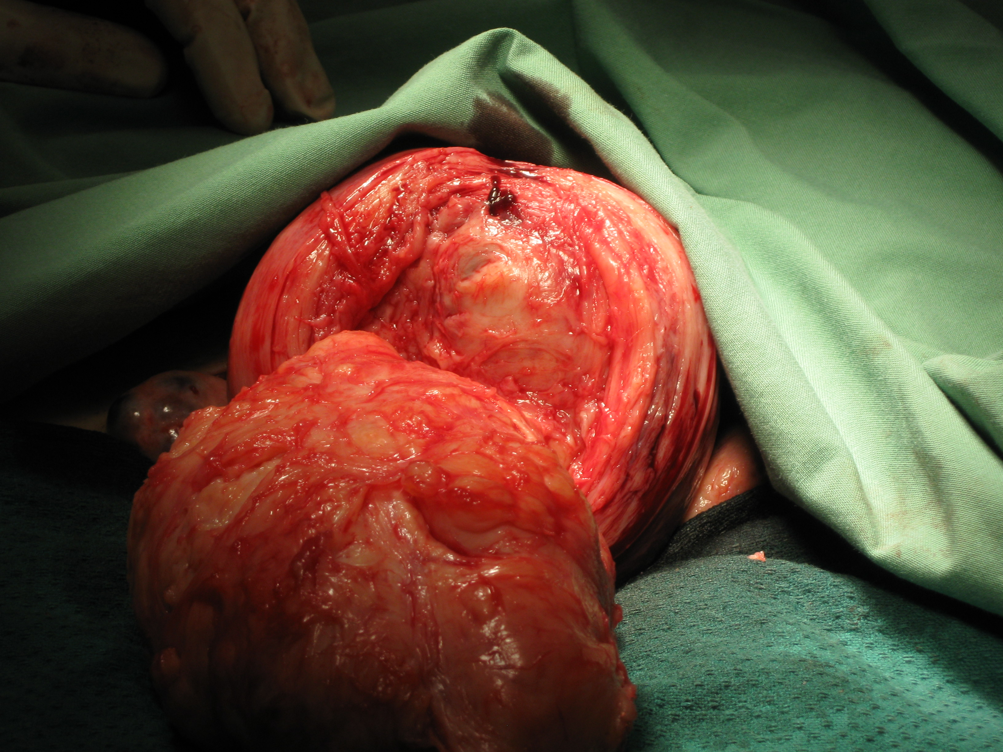 Myomectomy Fibroid Posterior Wall