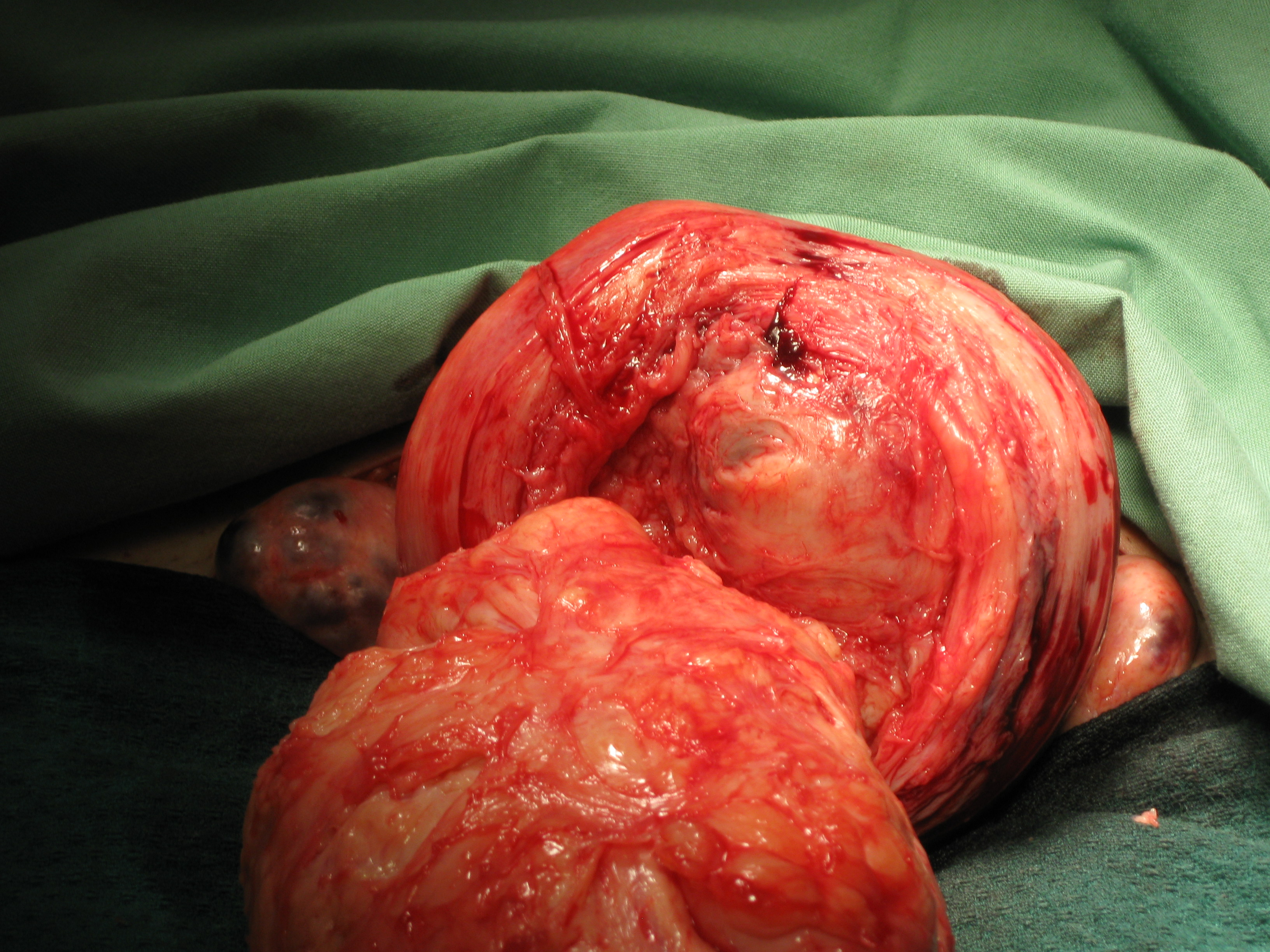 Myomectomy Fibroid Enucleation