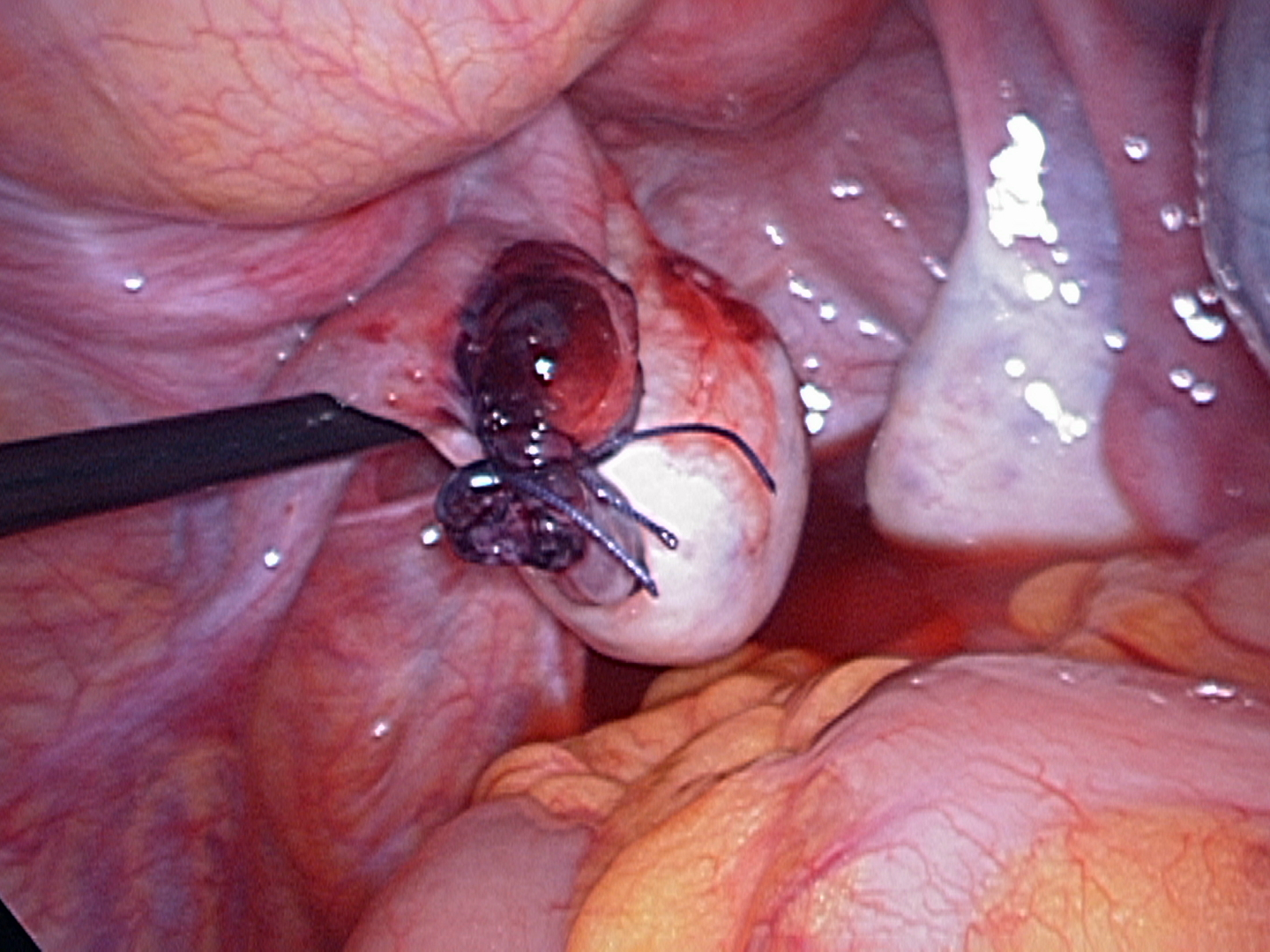 ovary after removing torted tube