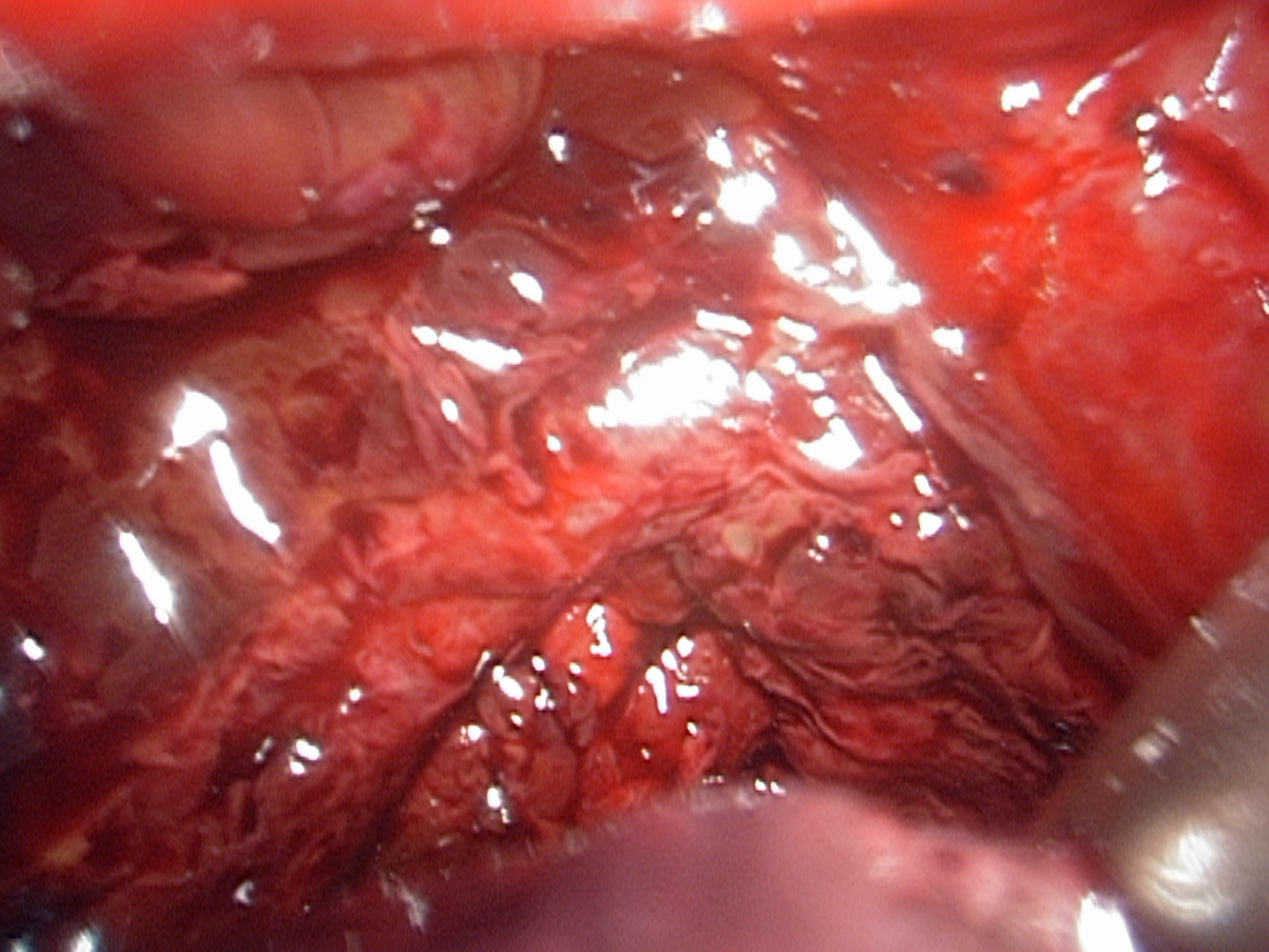 endometriosis - photo #1
