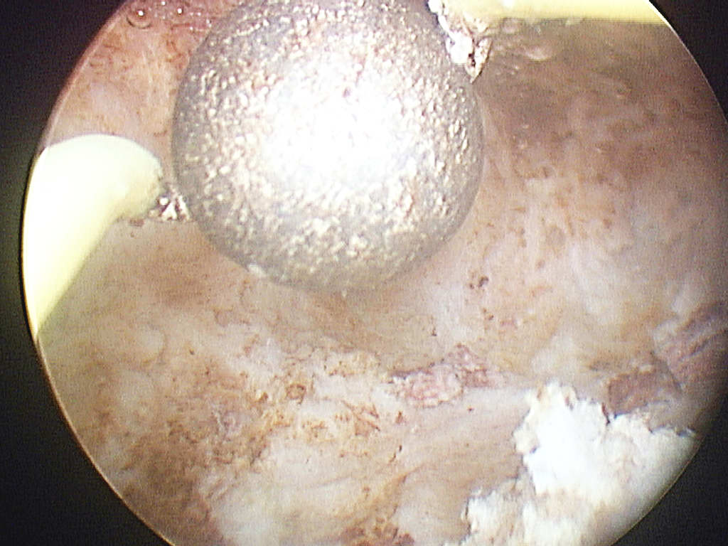 Roller ball endometrial ablation finished