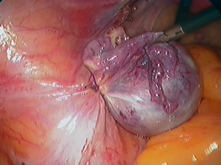 Left Ovarian Cyst and Ovary Prior to Division of the Pedicle