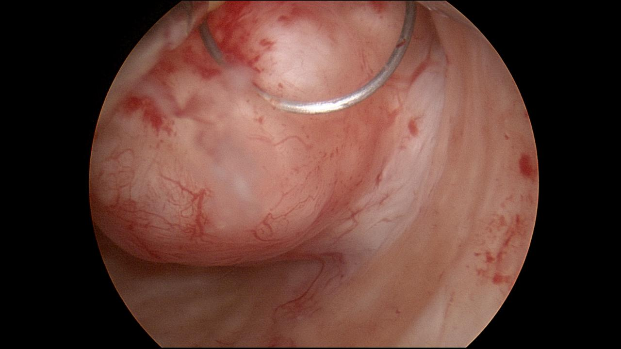 Submucus Fibroid Hysteroscopic Resection 3